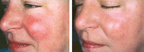 Facial broken capillaries treatment